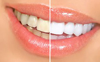 teeth-whitening-new